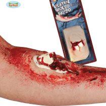 Cicatriz fractura abierta